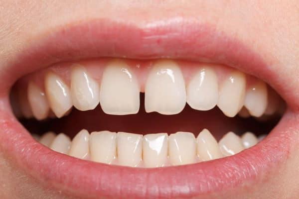 Gaps-in-Teeth-Diastema