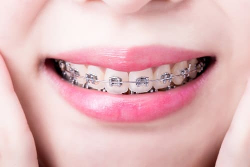 correct your bite at Hardy Pediatric Dentistry & Orthodontics in Westminster