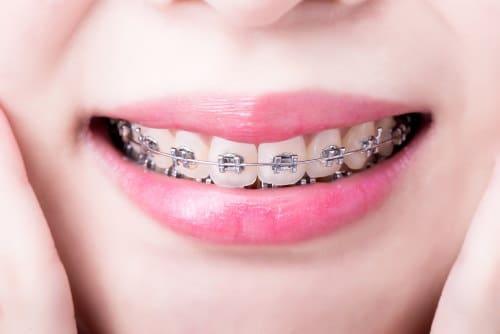 Metallic braces